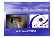 c p c l astigmatisme