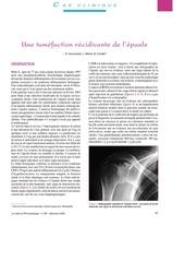 une tumefaction recidivante de l epaule