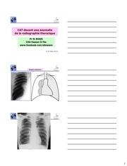 cat devant un pneumothorax 3 par page