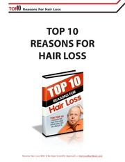 10 reasons for hair loss nbjrsg8785
