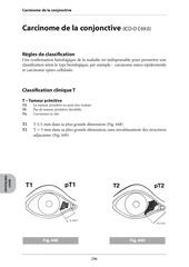 carcinome de la conjonctive