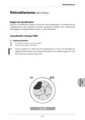 retinoblastome