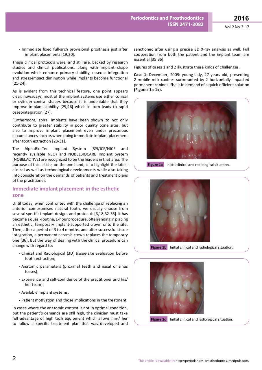 New Sensations with Latest Implant - PDF Dr ABBOU 2016.pdf - page 2/13