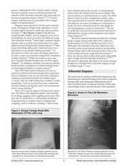 Inhaled_Foreign_Bodies_In_Pediatric_Patients.pdf - page 3/16