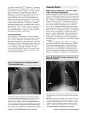 Inhaled_Foreign_Bodies_In_Pediatric_Patients.pdf - page 6/16